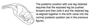 Posterior position with on leg retained.